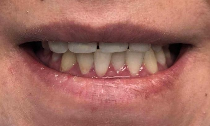 Periodontal-Treatment-Before-Image